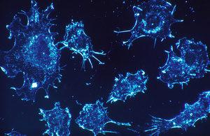 Government announces plans for earlier diagnosis for cancer patients