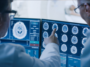 A new workforce report from The Royal College of Radiologists reveals the NHS needs nearly 2,000 extra radiologists
